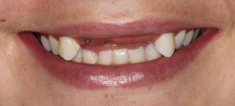 Dental Care Smile Before Intervention Missing front teeth