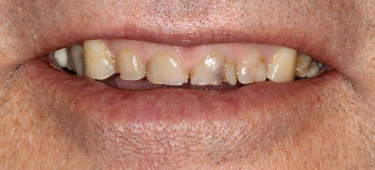 Sick Teeth