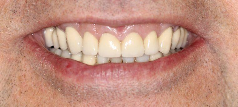 Charming Smile after Dental Intervention