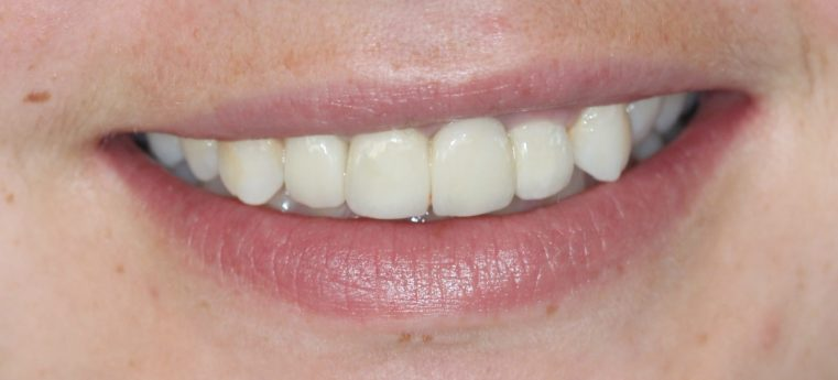 Dental Care Smile After Intervention