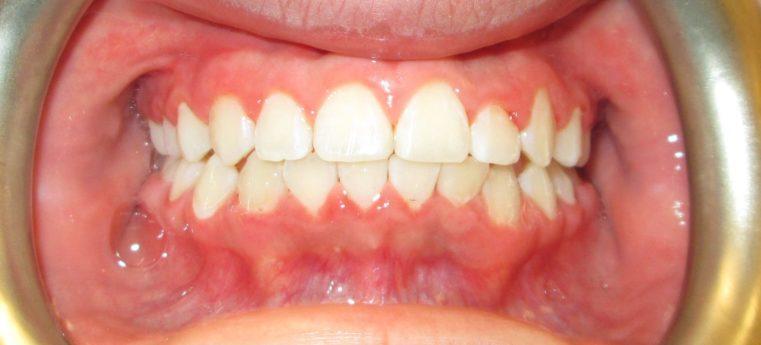 Dental Care Intervention Smile