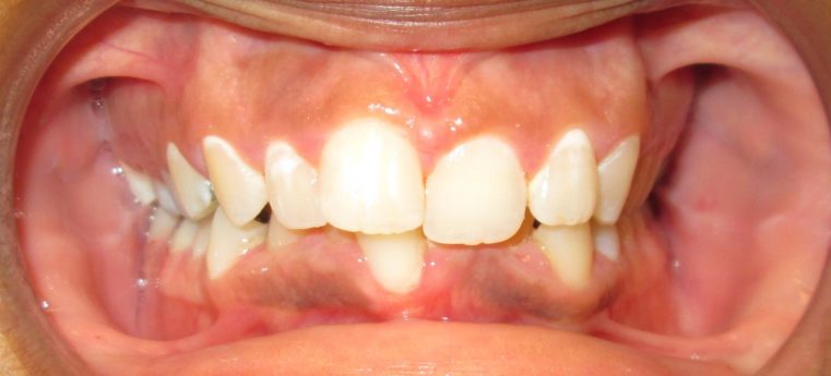 Treatment Dental Care Smile