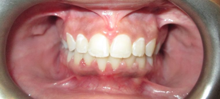 Dental Care Treatment Smile