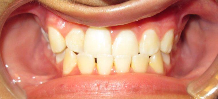 Dental Care Services Smile