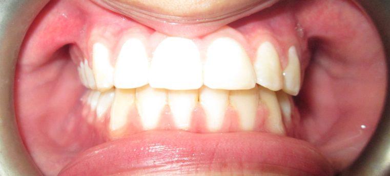 Smile Dental Care Services