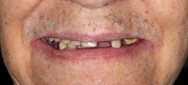 missing teeth before